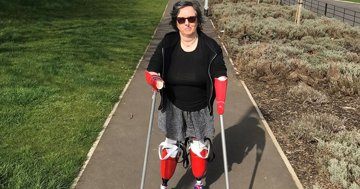 Mum who lost limbs to sepsis walks again - and plans family holiday