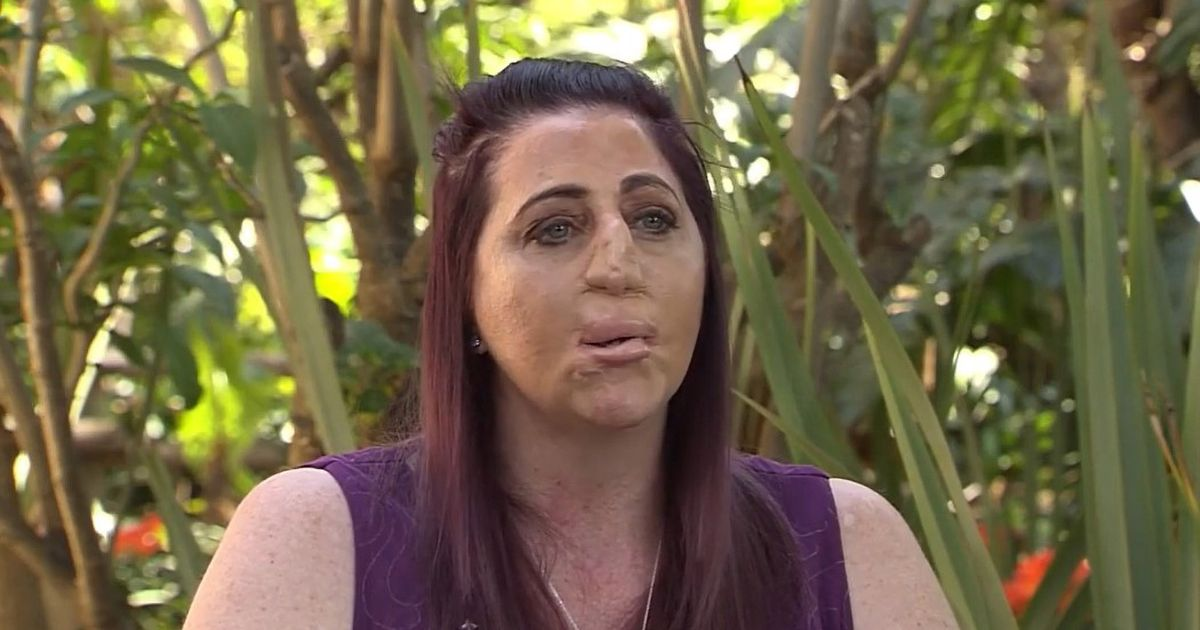 Woman bitten by mongoose lost nose, lips, tongue, hands and feet to sepsis