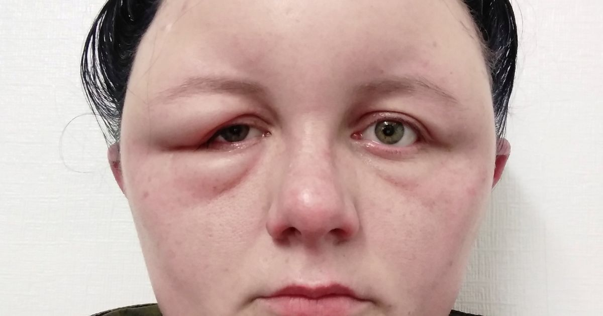 Woman rushed to hospital after hair dye leaves eyes swollen shut