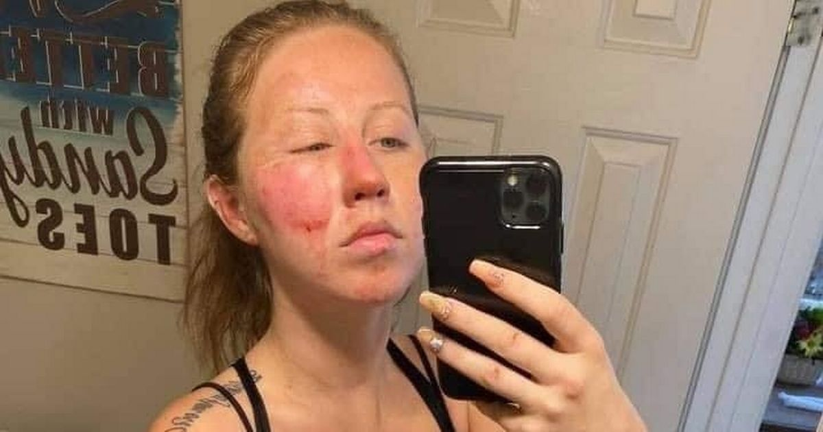 Woman suffers horrific facial burns as tray of flaming booze explodes on holiday