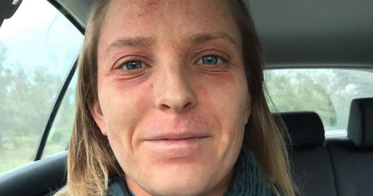 Woman's eczema cream hell with oozing sores and pain 'like an electric current'