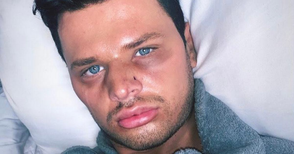 'Human Ken doll' left with broken nose after attack at bar
