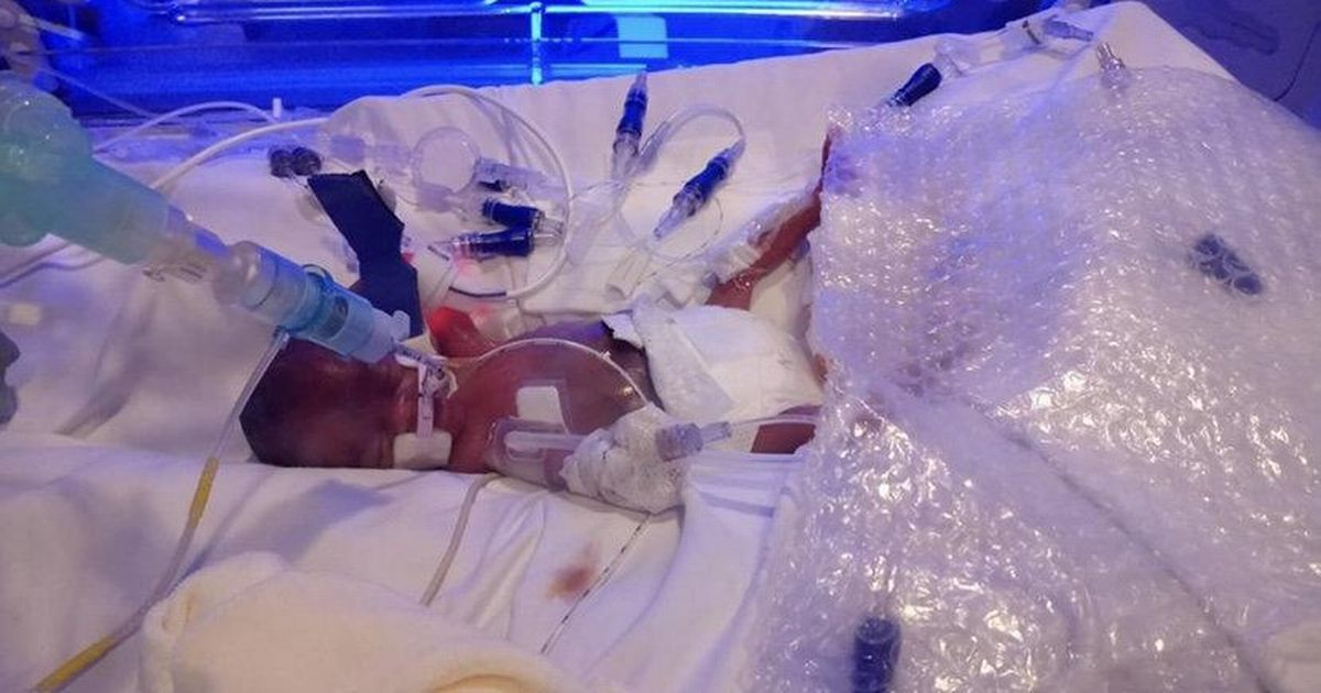 Baby born at 25 weeks weighed 13oz and was kept alive with bubble wrap