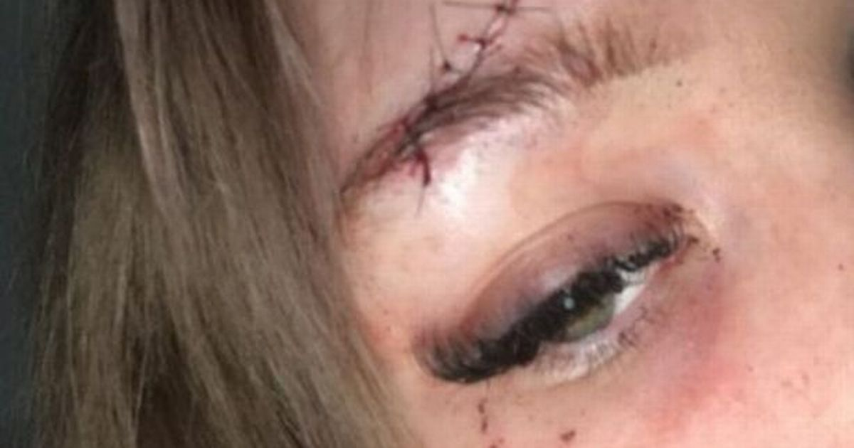 Mum covered in blood after being 'attacked while picking up a takeaway'