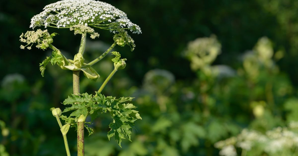 Dogwalker suffers enormous blisters after brushing past giant hogweed