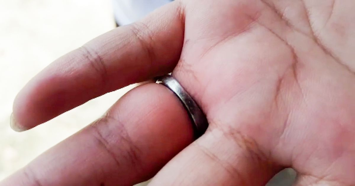 Fireman cut diamond ring off woman's finger after it was stuck for a month