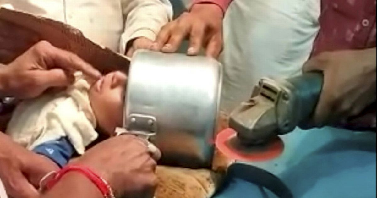 Doctors use angle grinder to free toddler who got a pressure cooker stuck on his head