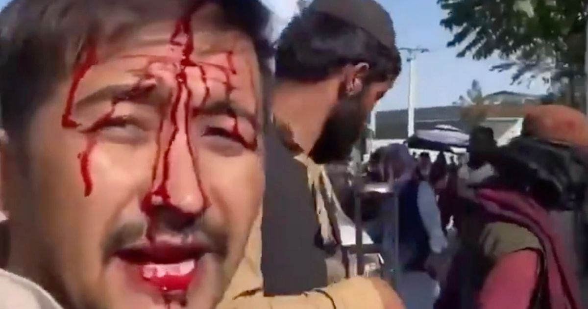 Taliban beat man and leave him bloodied as he tries to board evacuation flight
