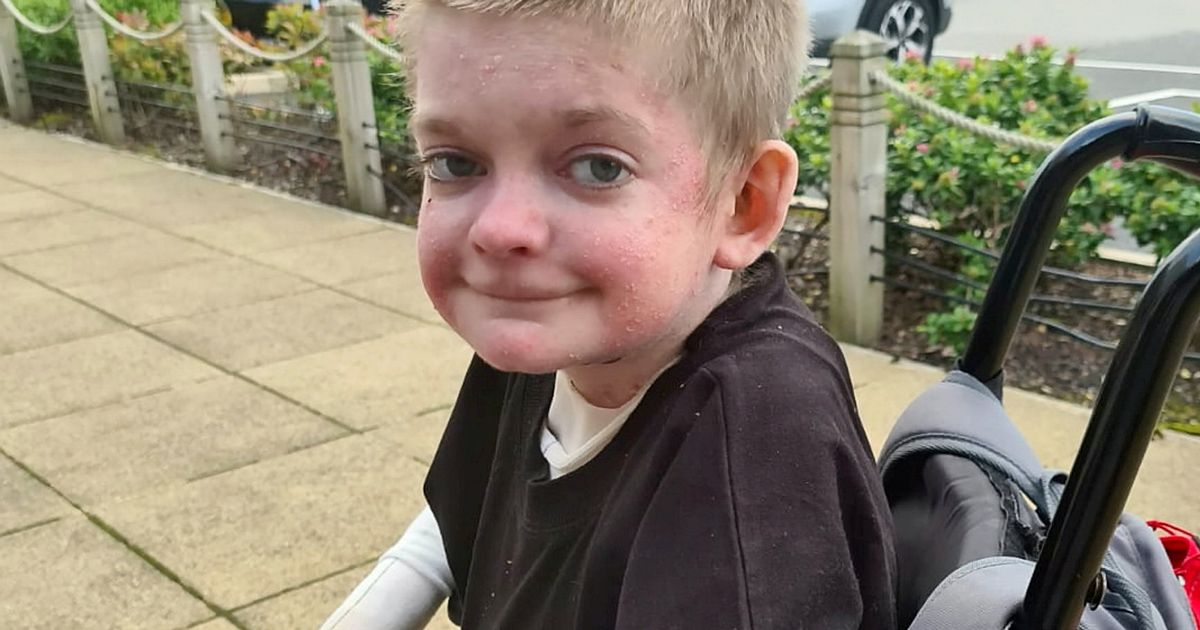 Mother shares the story of son born with rare skin condition who could be killed by something as tiny as a papercut