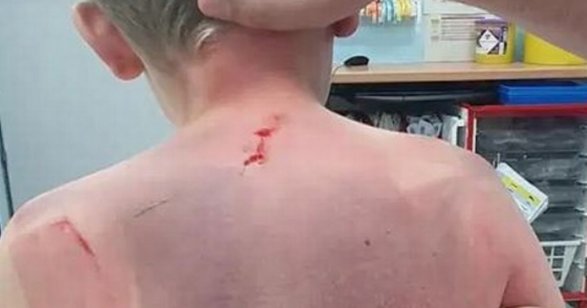Mum's hot tub warning as young son left unconscious in filter horror