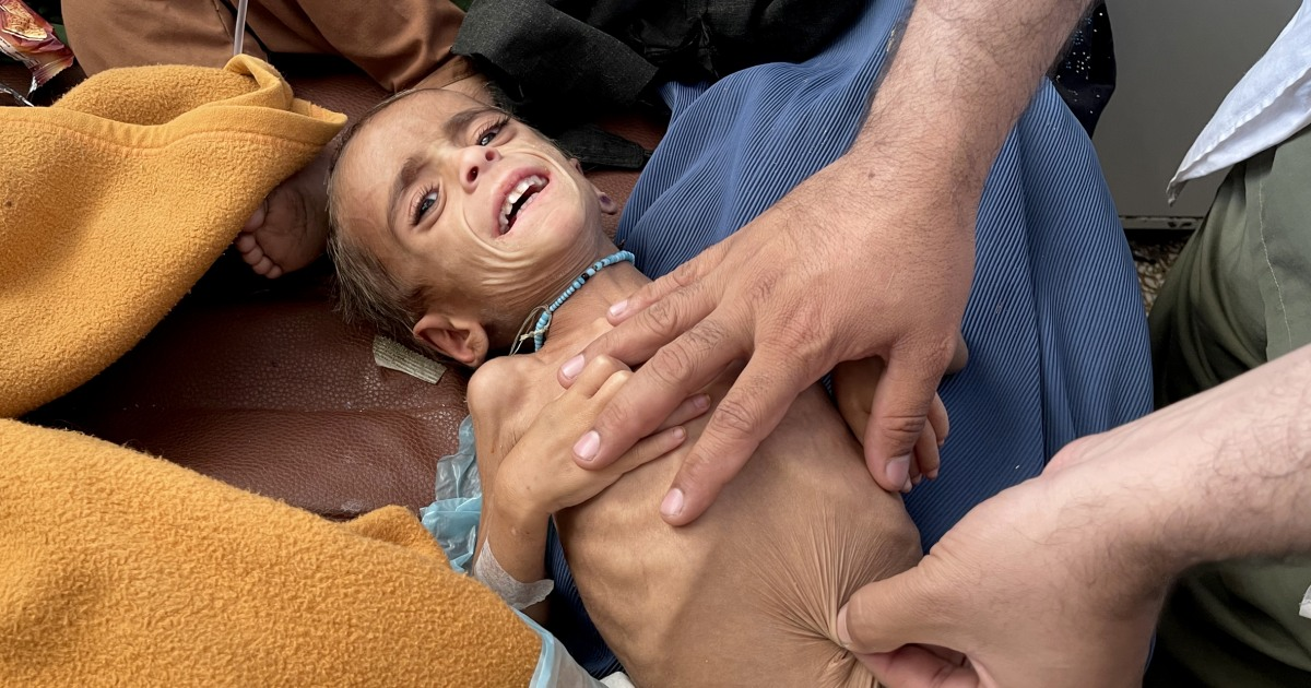 Images of severely emaciated Afghan children show deepening crisis