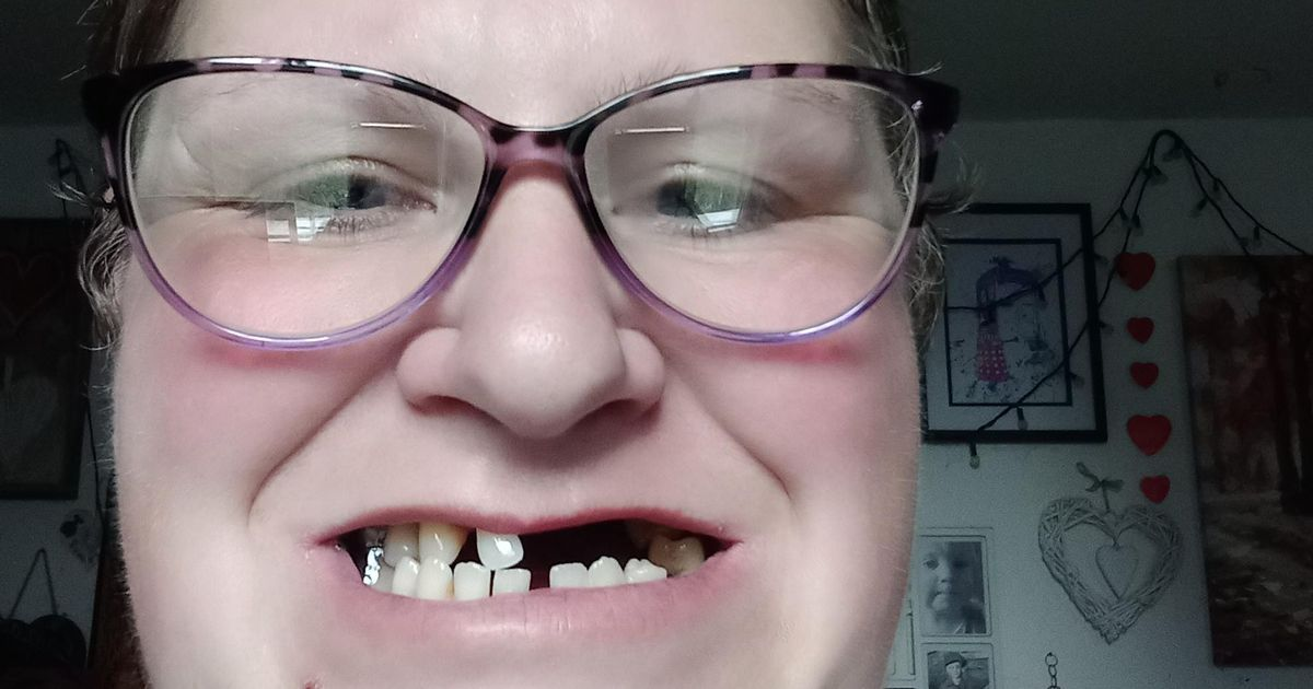 Mum removes 11 of her own teeth because she can't afford dentist