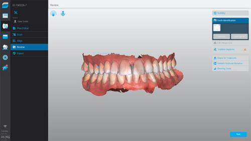 Color-Scan-Screenshot-Dental-Wings