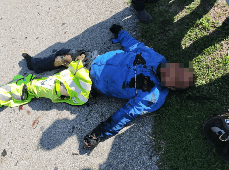 Injured motorcyclist motorcycle caught fire