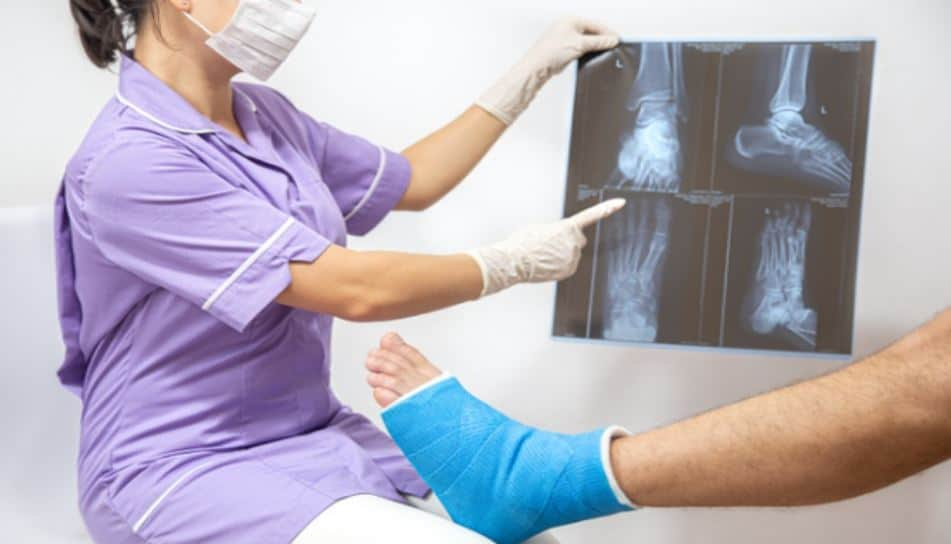 Greenstick Fracture- Complete Analysis: Symptoms, Risks, and more