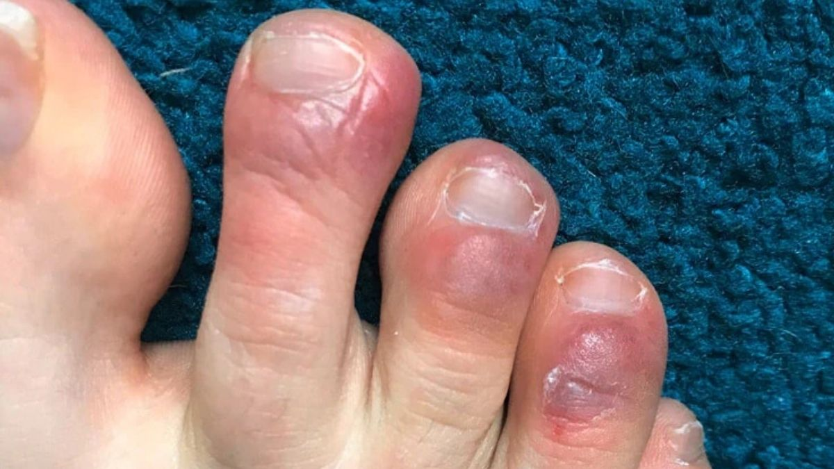 COVID Toes condition that causes purple rashes in patients' toes prompts medical attention