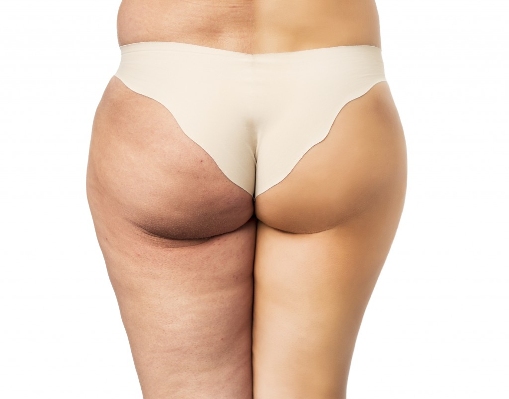 Cellulite Treatment What Really Works Cost Reviews Etc