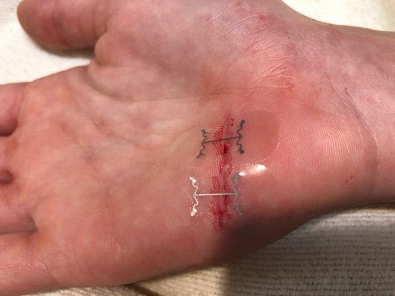 MicroMend, do-it-yourself suture without surgery
