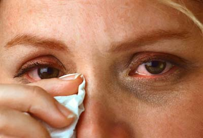 Fight Allergies the Natural Way | allergy