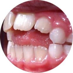 bad teeth, in the shape of a circle