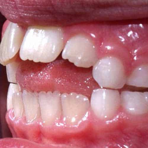 teeth in mouth that have not grown properly