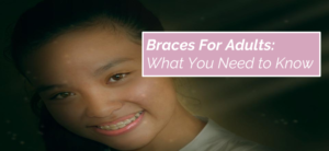 braces-for-adults-what-you-need-to-know