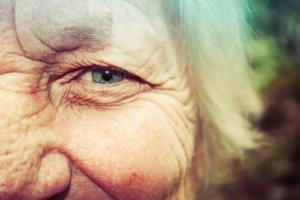 facial features that chanfe with age, all on 4 dental implants