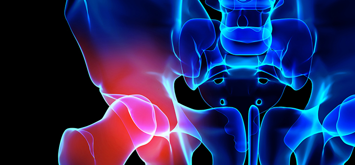 How hip replacement surgery has advanced