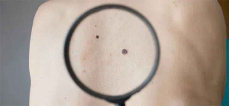 New melanoma treatment a game-changer in cancer therapy