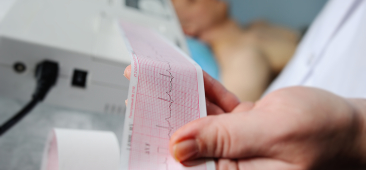 Massive imbalance in heart attack treatment and care, survey finds