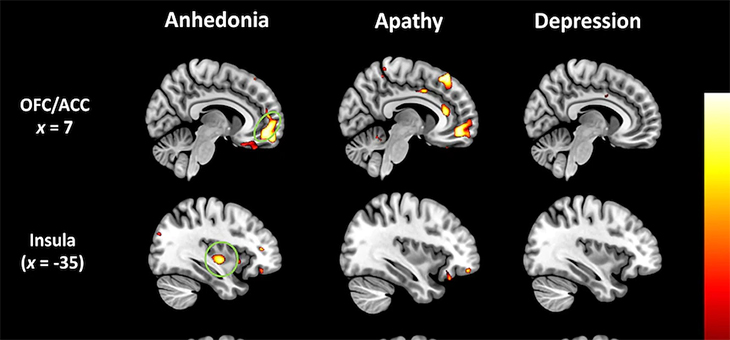 Loss of pleasure and happiness linked to dementia