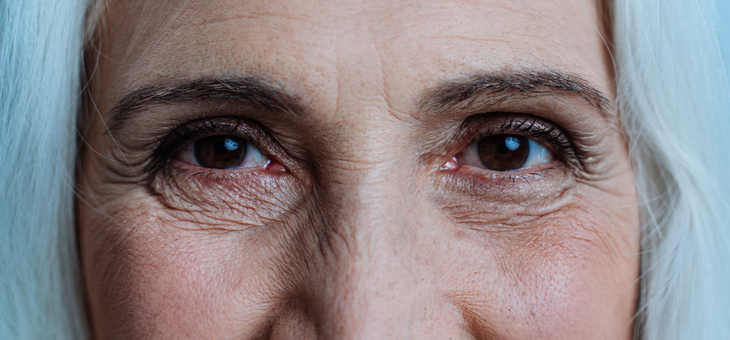 Normal tension glaucoma linked to cognitive impairment