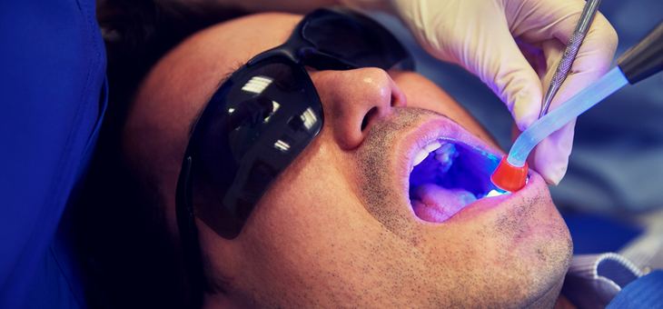 10 myths and facts about dental fillings