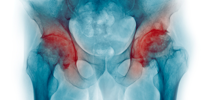 What is osteoporosis and why does it matter? Can you reverse it?