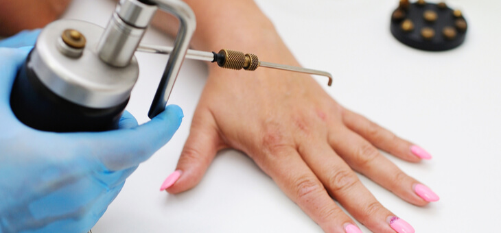 woman's hand being treated with dry ice