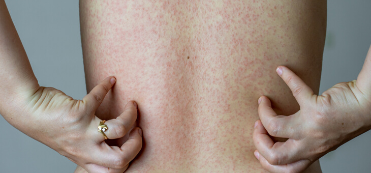 rear view of woman scratching rash on bare back