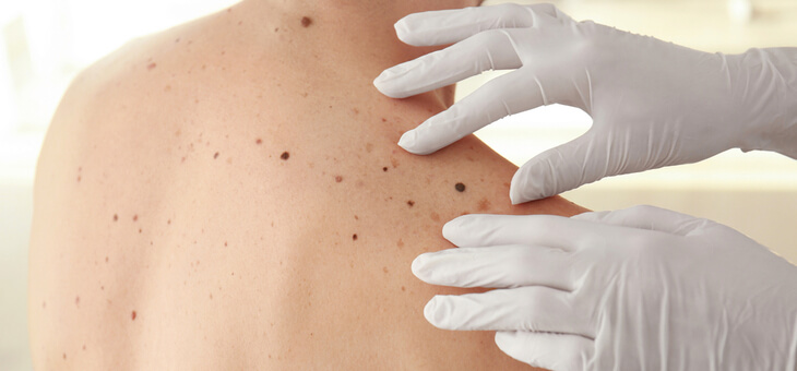 man having moles inspected by doctor