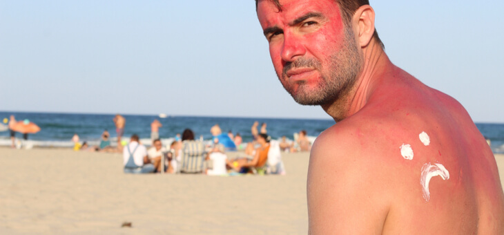 sunburnt man sitting on beach with frowny face of sunscreen on back